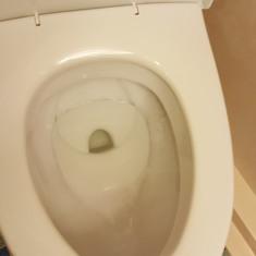 black ring in toilet